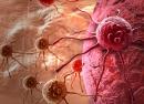 السرطان وأمراض القلب في صدارة أسباب الوفاة بأوروبا